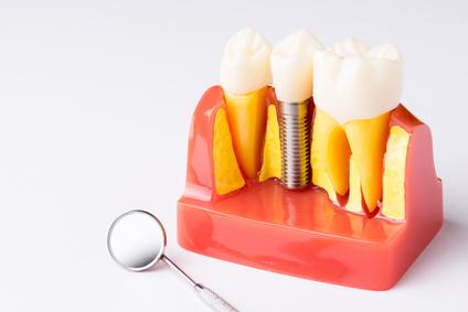 Kronenverlängerung - Zahnarzt München