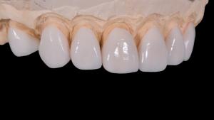 Zahnimplantat - Dr. med. Hiltscher