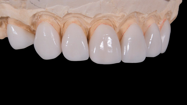 Zahnimplantate - Dr. med. Hiltscher