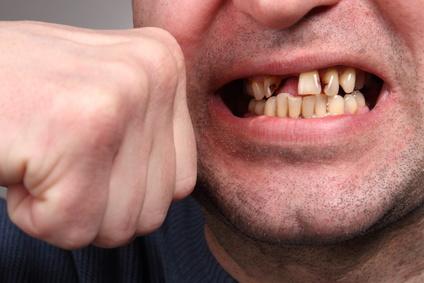 Auch Zahnunfälle sind sanierbar
